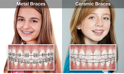 orthodontic-overview-thumb.jpg